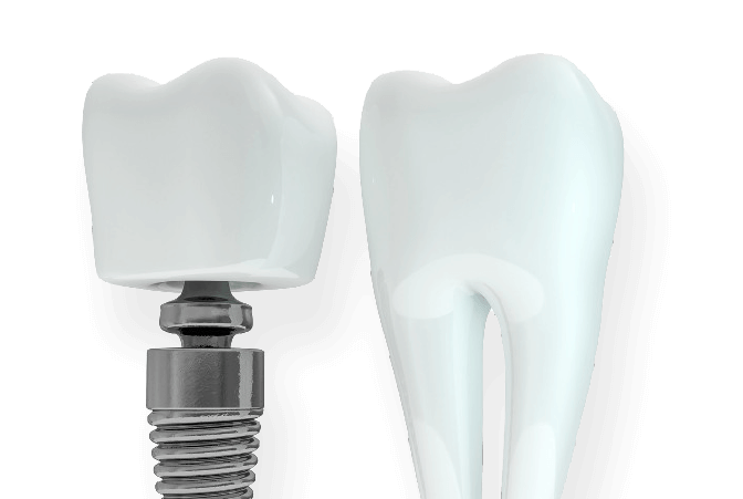 Why Choose Dental Ariston
